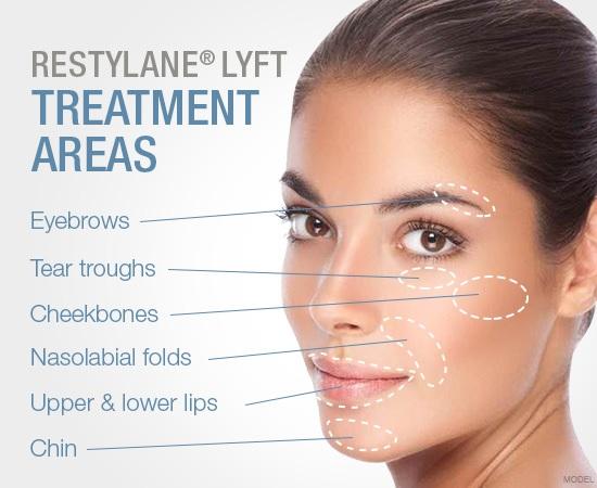 Restylane Lyft®